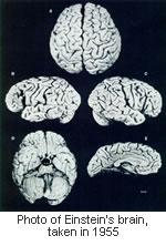 einstein-brain.jpg
